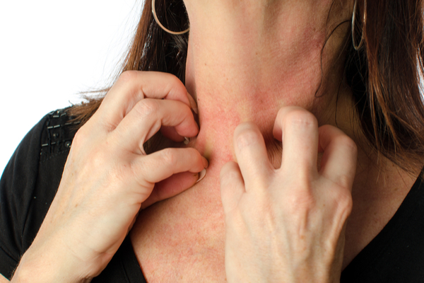 Electro Homeopathic Treatment of Itching