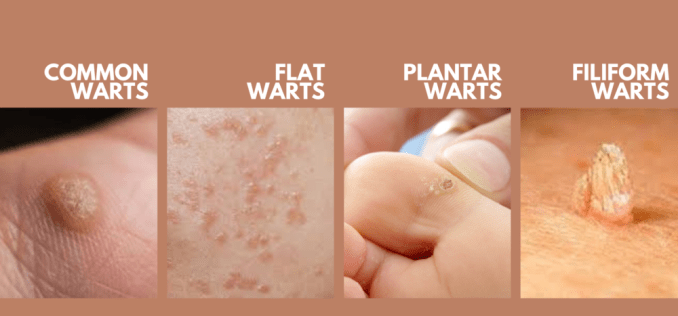 Electro Homeopathic Treatment of Warts