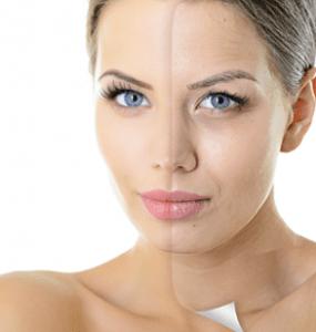 Anti Aging Tratamentos