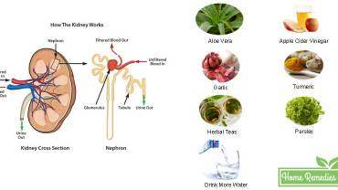 Kidney Infection Home Remedies: Causes, Symptoms, Prevention