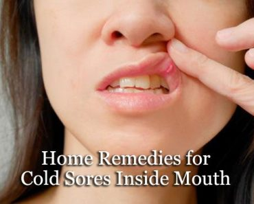 Home Remedies Advice - Best Natural Remedies Inside