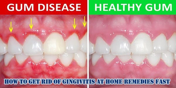 How To Get Rid Of Gingivitis At Home Remedies Fast