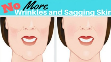 no-wrinkles-and-sagging-facial-skin
