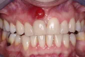 toothache from abscessed tooth