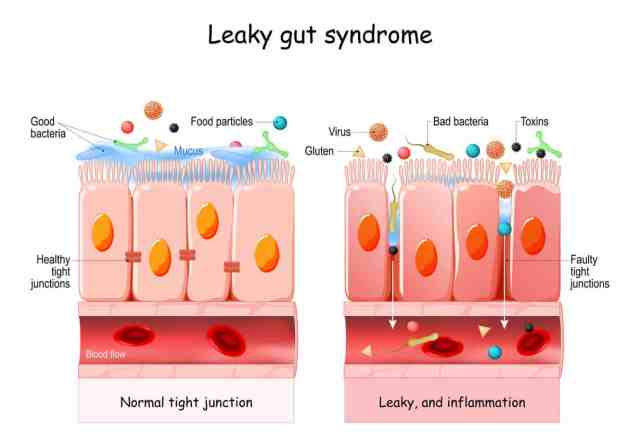 Leaky gut Syndrome. difference between Healthy cells, and inflamed intestinal cells. Comparison normal tissue of the gastrointestinal tract, and leaky gut. It shows the importance of the leaky gut diet.