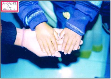 A Case of Vitiligo - Hompath