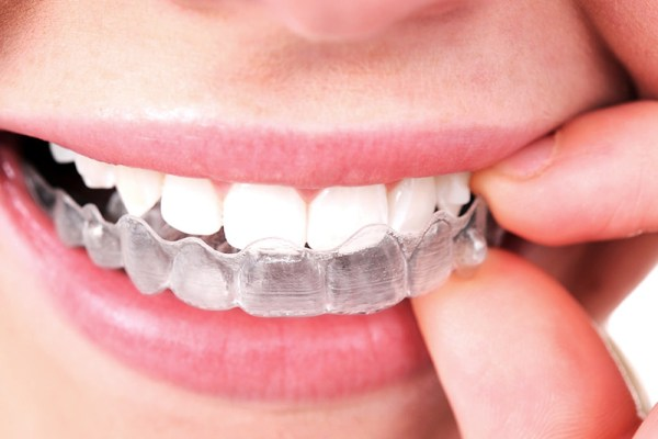 how to clean invisalign