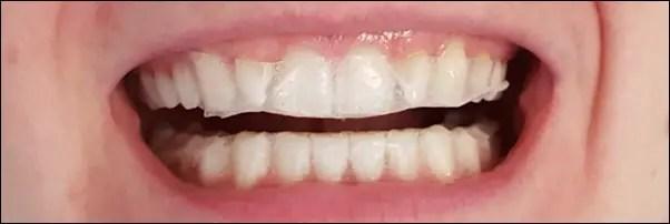 Zahnaufhellung zu Hause - Zähne bleichen mit PEARL Guard Dental Whitening Strips Zahnaufheller Tag 1