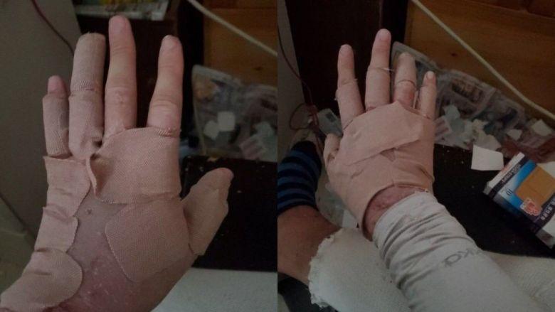 Dermatitis patient Hong Kong protest clinic underground hidden