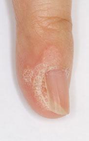 疣 / 扁平疣 Common Wart / Plane Wart | 香港皮膚網 HKskin.com