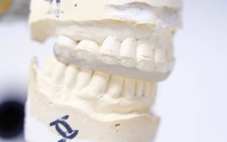 Night guard fabricated by Dr. Adachi to help with TMJ / TMD issues