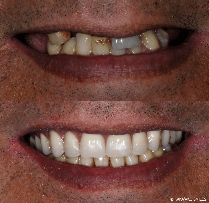 Kaka'ako Smiles before and after denture case