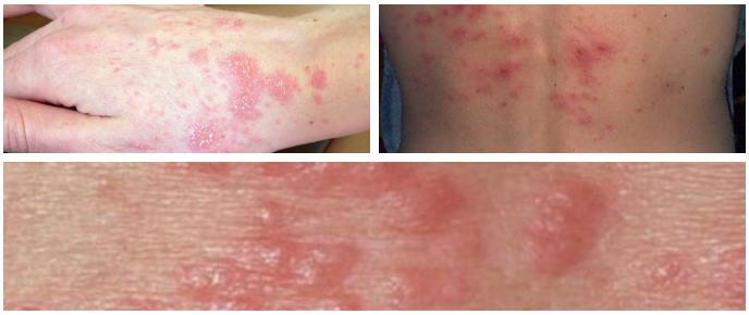 Scabies On The Skin Causes Symptoms And Treatment