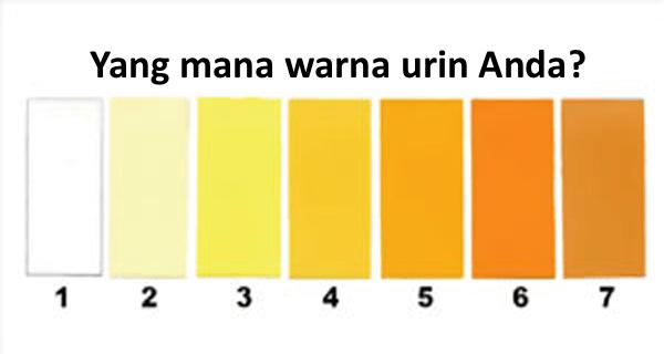 7 warna urin yang bisa mengambarkan kesehatan tubuh