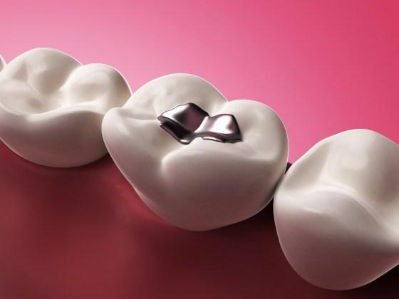 Substituição de Restaurações de Amalgama por Resina Branca