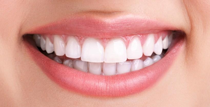 Qual é a A Solução para o seu sorriso?