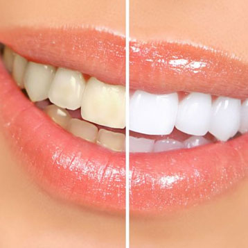 O clareamento dental dói?