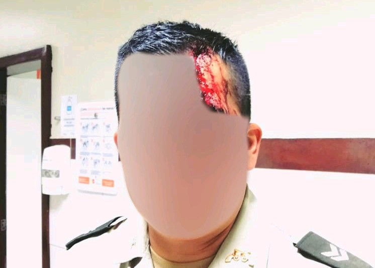 La herida le produjo un sangrado profuso.