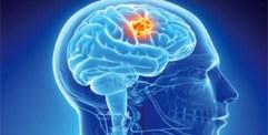 باحثون يطورون روبوتات صغيرة لكشف أورام الدماغ