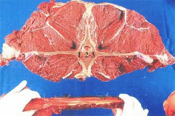 lumbar-vertebra