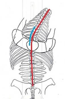 lateral-bend
