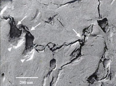 Higher magnification of arca along the developing microfracture in the previous picture. Note mismatched surfaces (arrows) and fragmentation of margins indicating fracture gap has collapsed. Osteoclastic erosion sites (arrowheads) were seen in larger developing cracks and indicated there had been remodeling at the site.
