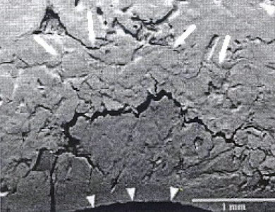 Subchondral bone microfracture at the site of collapse and indentation of cartilage (arrowheads) in a sample from the group with advanced lesions. A fracture line through the calcified cartilage, (lower left) is associated with further infolding. The layer of bone above the microfracture has multiple fragmentation lines and a compacted appearance (outlined by arrows).