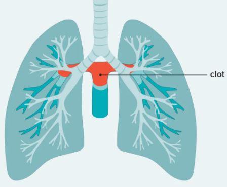 pulmonary saddle embolism
