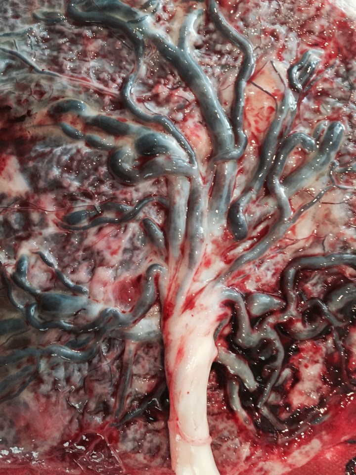 placenta tree of life