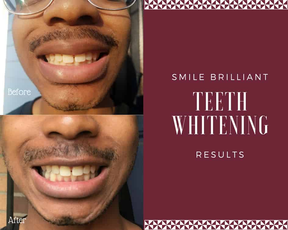 Smile Brilliant At Home Teeth Whitening System