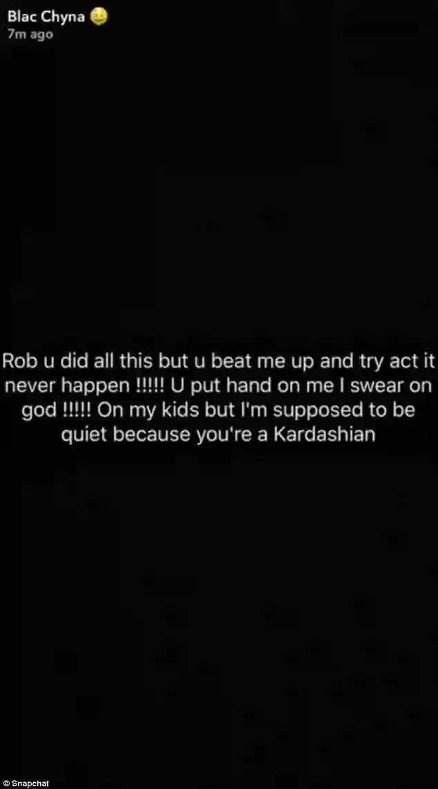 Blac Chyna claimed Rob Kardashian Beat Her Up and Told Her To Keep Quiet About It
