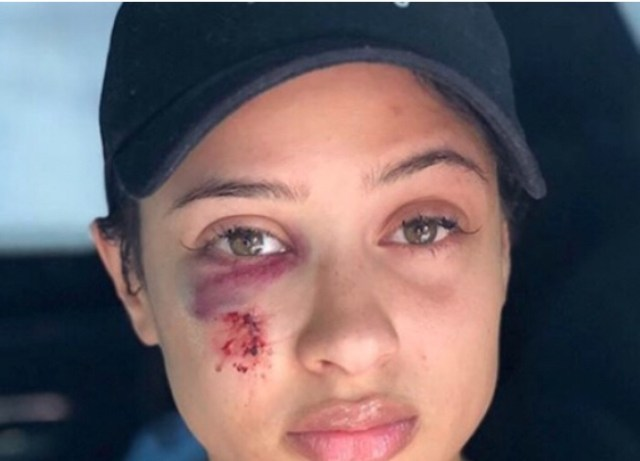 Tori Brixx releases photos showing she was assaulted during Rich The Kid's robbery