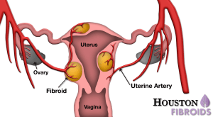 are all fibroids the same