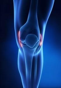 knee pain, pain in the knee, pain knee