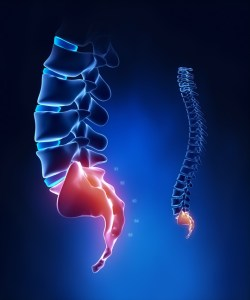 tail bone pain in Houston, tail bone pain, coccyx pain, pain in coccyx