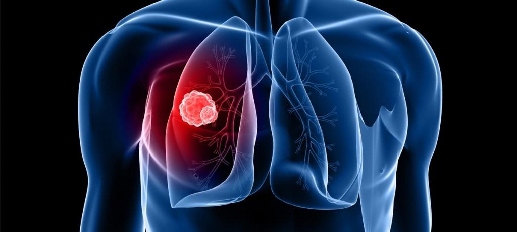 Cancer Spreading Organ