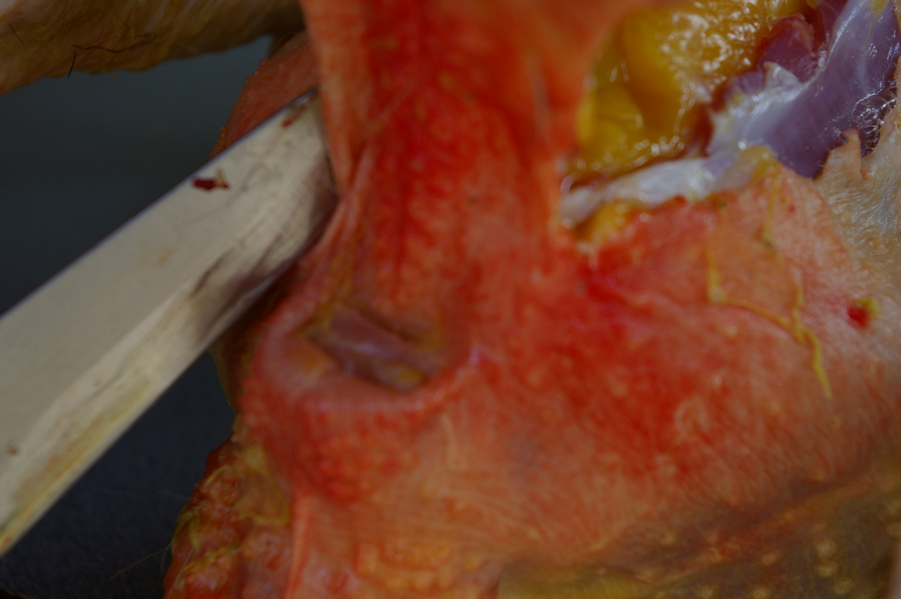 Cut towards the anus being careful not to cut through colon.