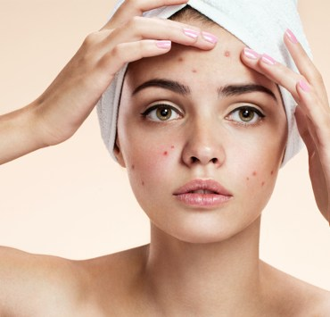 how to treat papules acne