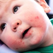 pacifier rash in babies