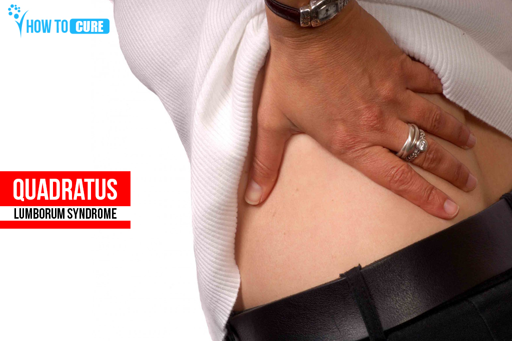 Quadratus-Lumborum-Syndrome howtocure