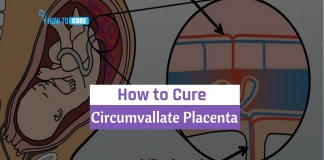 how to cure circumvallate placenta