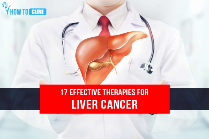 17 Effective Therapies for Liver Cancer Cure