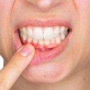 Effects of Pyorrhoea on gums