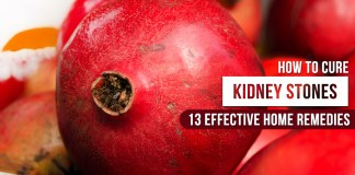 How to Cure Kidney Stones 13 Effective Home Remedies