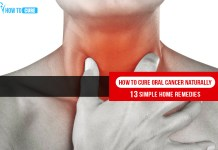 How to Cure Oral Cancer Naturally 13 Simple Home remedies