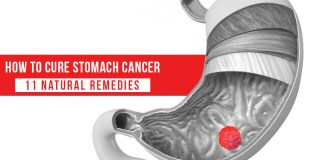 How to Cure Stomach Cancer 11 Natural Remedies