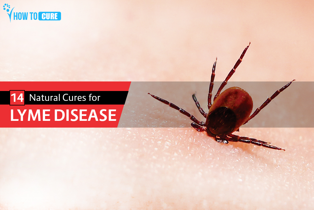 natural cures for lyme diseasenatural cures for lyme disease