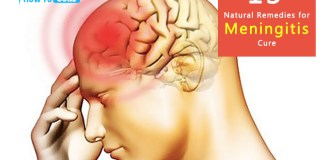 13 Natural Remedies for Meningitis Cure