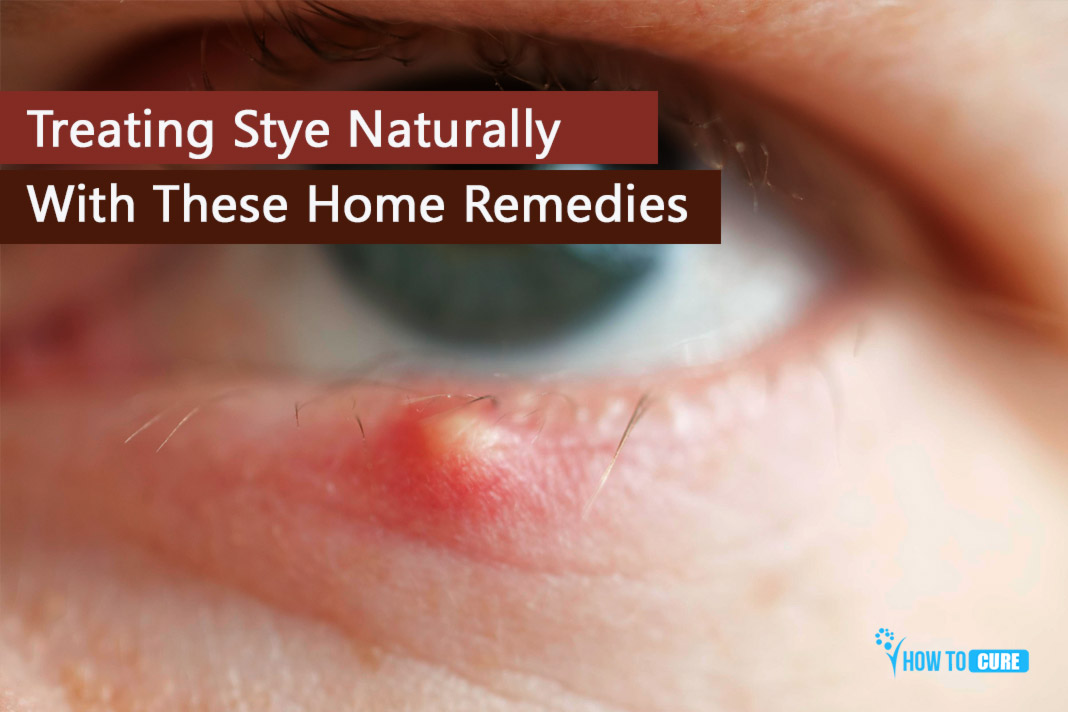 How To Get Rid Of A Stye Best Natural Home Remedies For Stye To