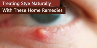 Home remedies for stye